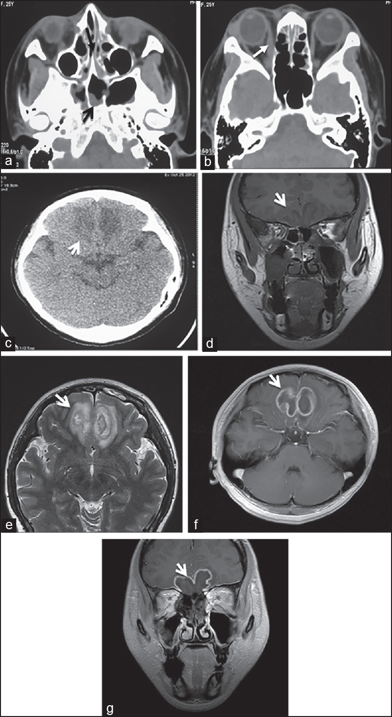 Figure 2 : CT and MRI performanceo fIM (a) Cranial CT scanning showed: The nasal cavity and sinus showed a broader inflammation (black arrow). (b) Normal cranial CT scanning showed: The medial rectus and lacrimal gland of the right eye, as well as the swollen right periorbital soft tissue (white arrow). (c) Cranial CT showed the slabby low density area of the frontal lobe's underside in the acute phase (white arrow). (d) Normal cranial MRI scanning showed T1-weighted images (coronal) during the third week of onset. (e) The T2-weighted image showed (axial): That the underside of the bilateral frontal lobes had uneven long T1 and T2 signals, the boundary was unclear, the structures had been destroyed, the sulcus and gyrus were not clear, and the peri-lesion area had edema (white arrows). (f) Cranial MRI (sagittal) in the fifth week of hospitalization. (g) Coronal enhanced scanning showed: That the lesion appeared as a uniform annular enhancement (white arrow)